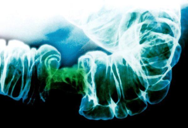 Rx com estreitamento do intestino devido a câncer de intestino